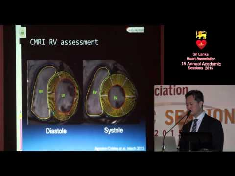 Update on Right Ventricular Failure