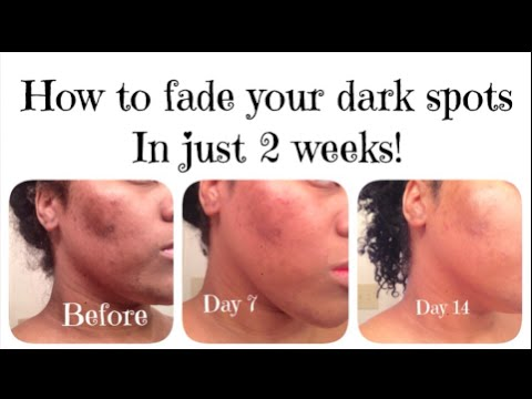How I FADED my DARK SPOTS in 2 WEEKS! - YouTube