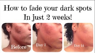 How I FADED my DARK SPOTS in 2 WEEKS!