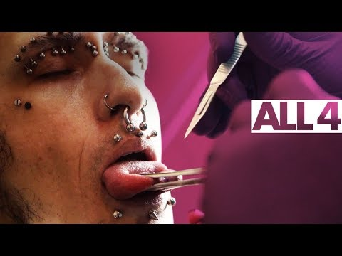 Splitting Your Tongue With A Scalpel | Body Mods