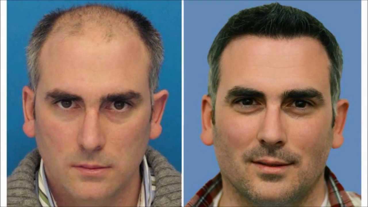 Hair Transplant Timeline World Class Results - YouTube