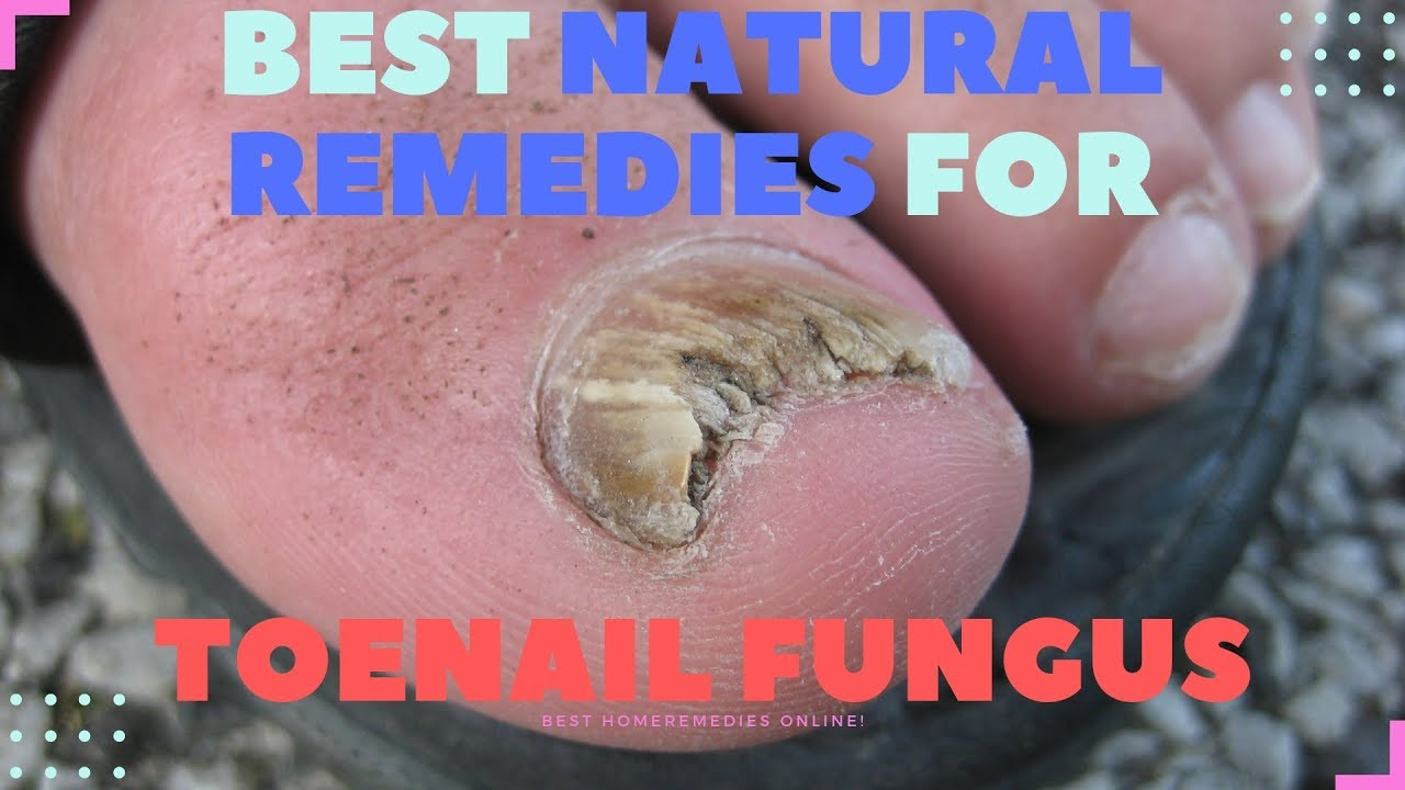 The BEST Natural remedies for Toenail Fungus - YouTube