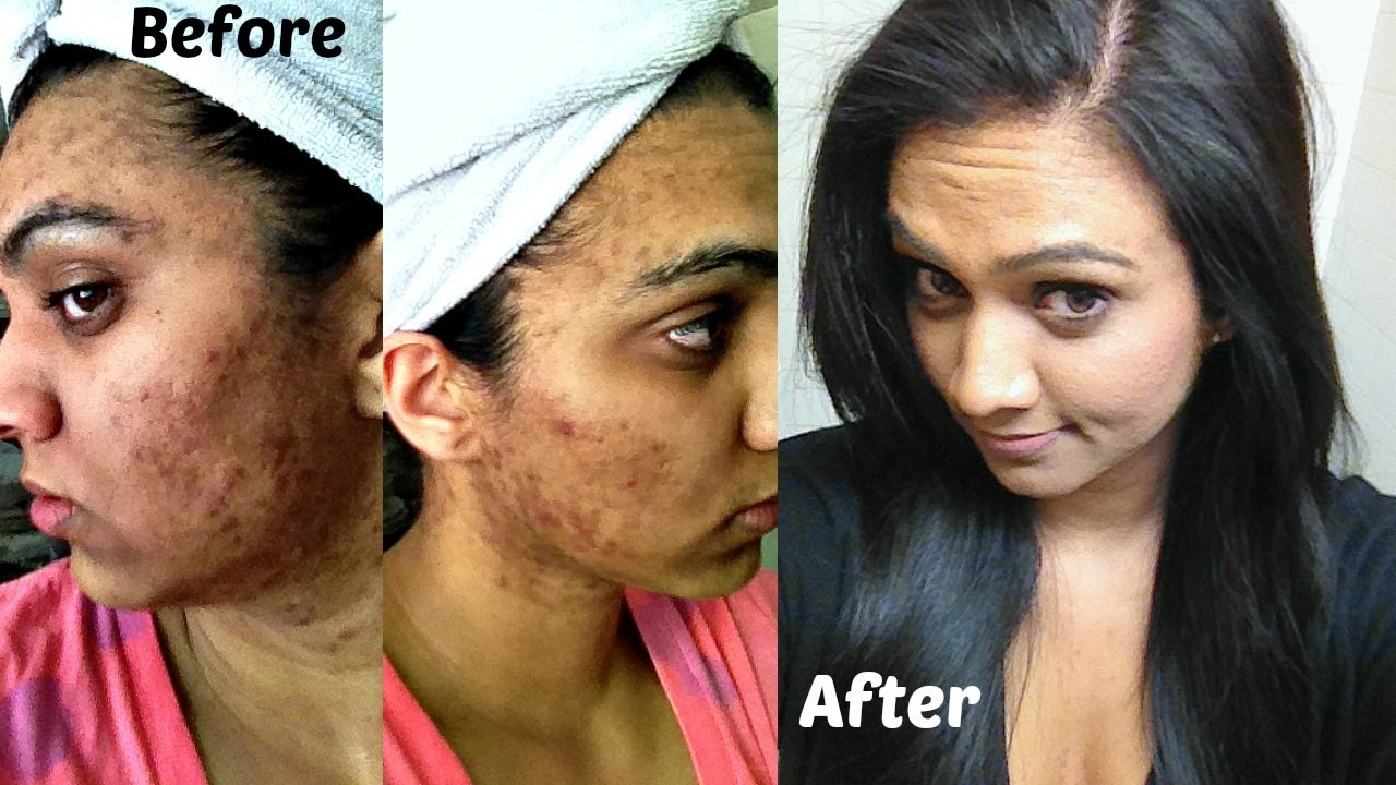 My ACNE Story + Before/After Pics (Part 1) - YouTube