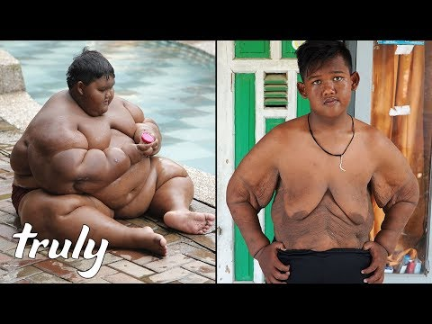 World's Heaviest Kid Loses 220lbs | TRULY