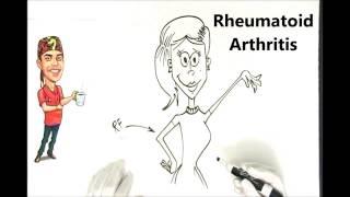 Rheumatoid Arthritis Explained Simply