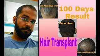 100 Days Of My FUE Hair Transplant Surgery !!! Best Result in 3 Months