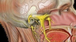 Da cirurgia dor mandíbula nervo da no