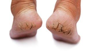 Rachaduras nos pés   creme caseiro que realmente funciona!