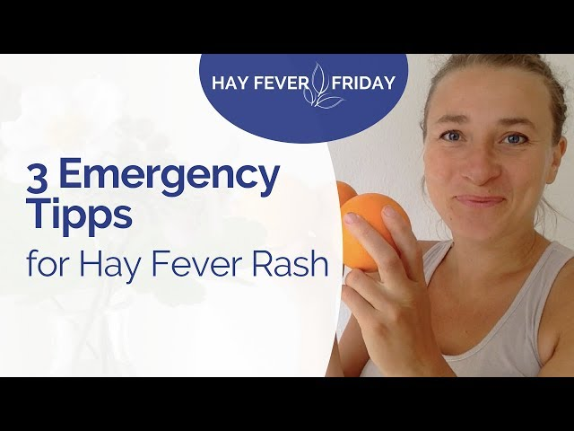 Relief Hay Fever Rash within 30 min - 3 Emergency Tips to Reduce Your Hay Fever Symptoms Naturally