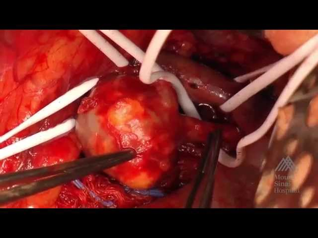 THE MOUNT SINAI SURGICAL FILM ATLAS Renal Artery Aneurysm Repair