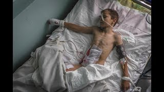9yo Vladik sees his mother killed buy Ukraine Shelling: Donetsk Protest