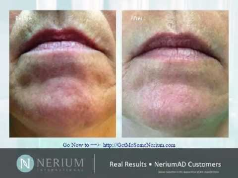Nerium Before and After Photos Reviews Mouth and Smoker Lines