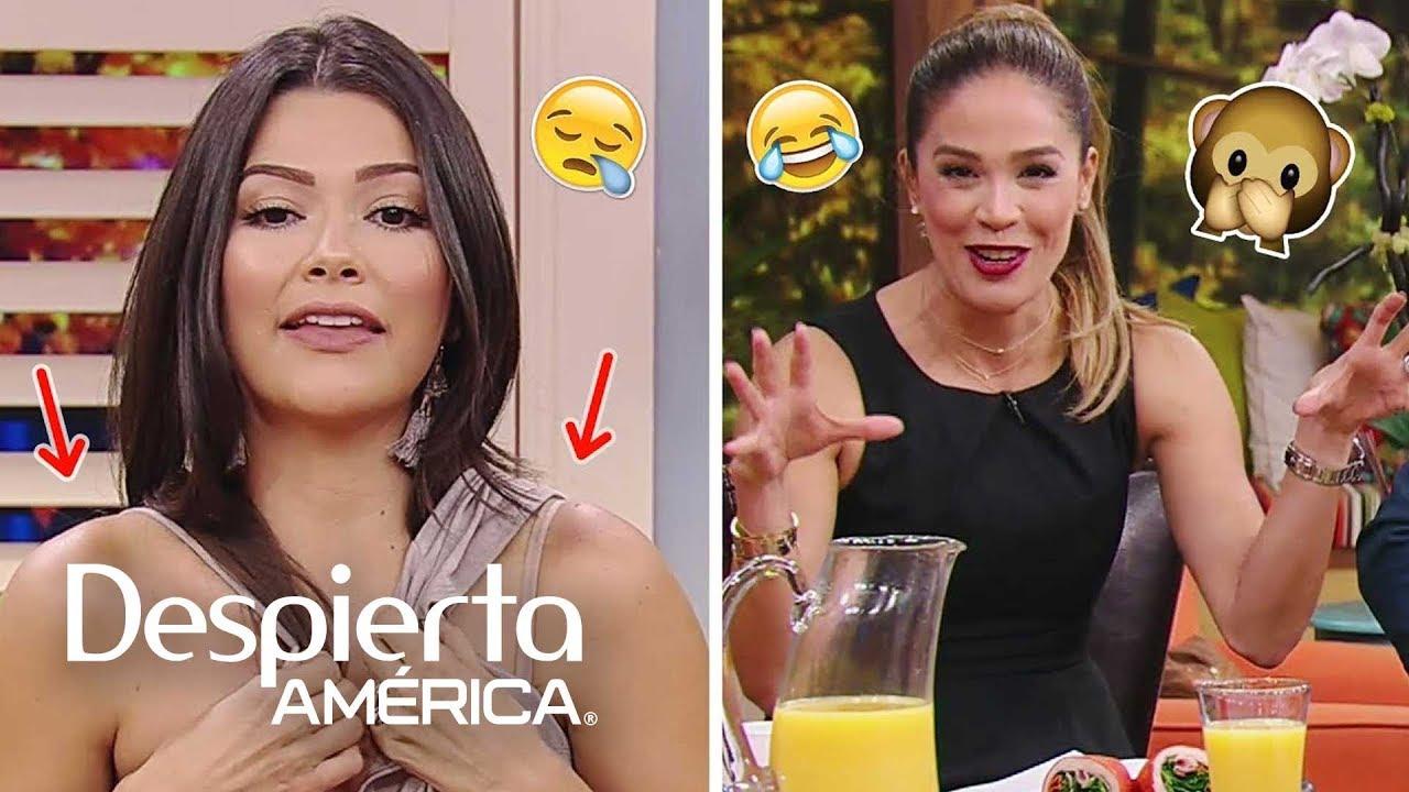 DAEnUnMinuto: Ana tiene nuevos moretones y Karla también cuenta chistes