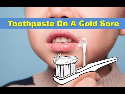 Toothpaste On Cold Sore: Does It Work? | Home Remedy For Cold Sore