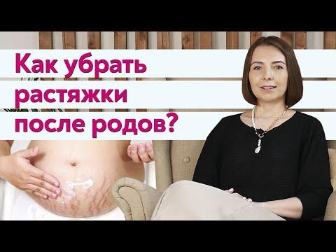 Как убрать растяжки родов и убрать живот в домашних условиях