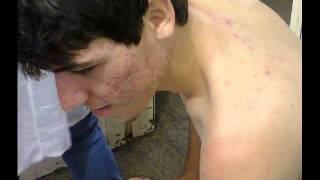tratamento contra acne sem roacutan