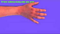 Drug Rehab Programs in North Bergen NJ | Call 800-303-2938 For  MORE INFO