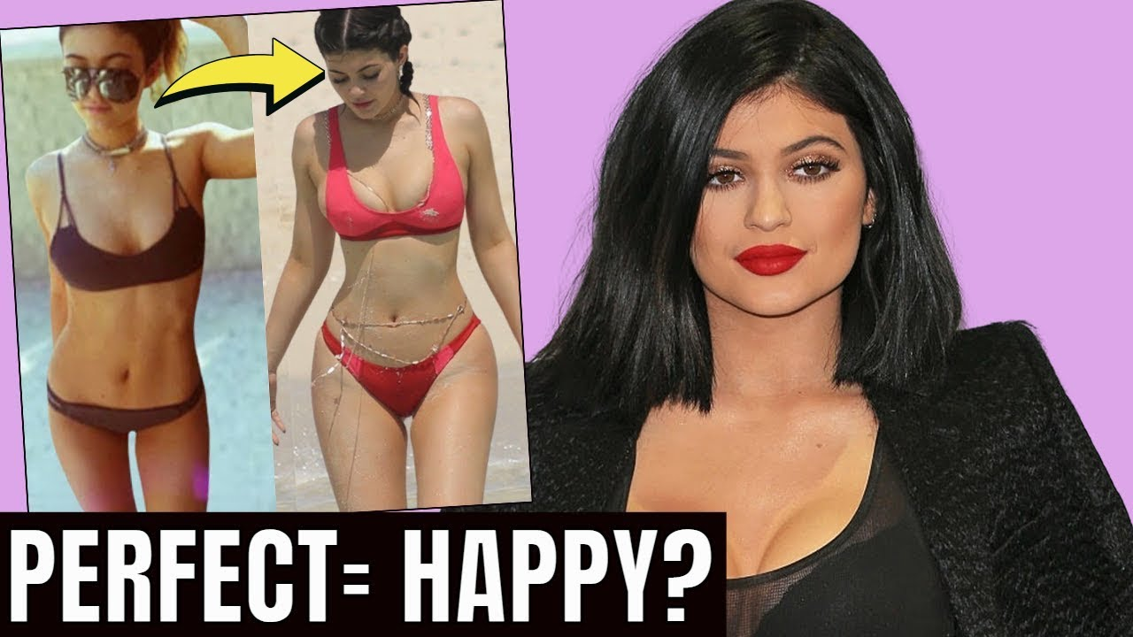 Kylie Jenner::  Plastic Surgery The FINAL WORD on Everything She's Done