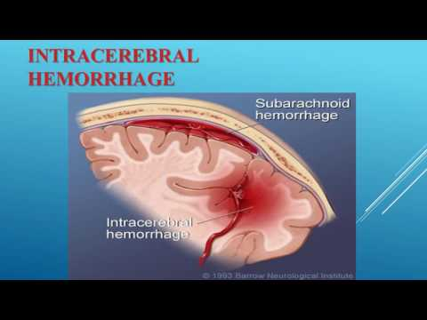 Cerebral Vascular Accident CVA Stroke