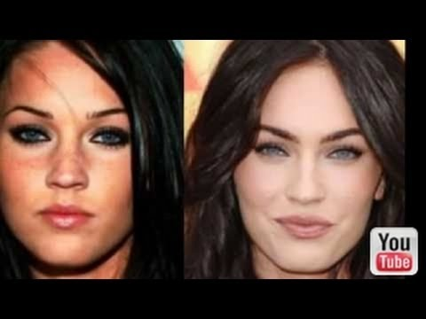 Celebrities After Plastic Surgery Then And Now Pictures