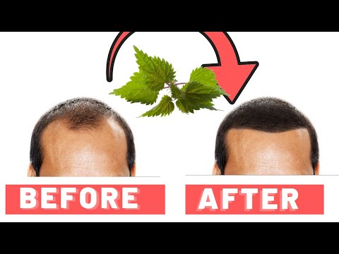 Stinging Nettle Root For Hair Loss: How It Works
