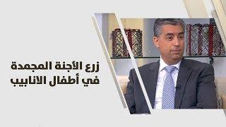 د. عارف الخالدي - زرع الأجنة المجمدة في أطفال الانابيب