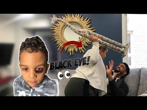 I Gave My Son A BLACK EYE To See How HIS MOM Would React!!! *THIS HAPPENED*