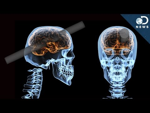 What Could Happen After A Brain Injury?