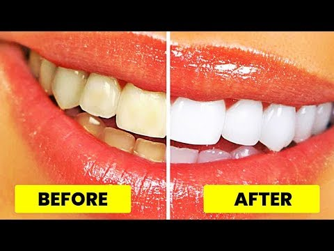 Top 5 Simple Ways to Naturally Whiten Your Teeth at Home Overnight