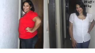 1 ano de gastroplastia de Jéssica M