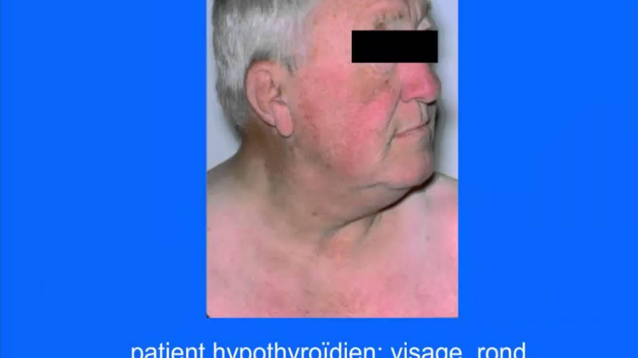Cours d'anatomie et physiologie :LA GLANDE THYROIDE ET PARATHYROIDE  PHYSIOLOGIE