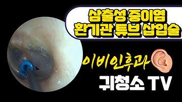 삼출성 중이염 환기관 튜브 삽입술 (OME ventilation tube insertion)