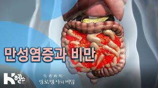 만성염증과 비만의 관계_729회(20.04.22) 질병…