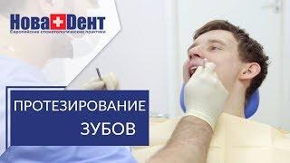 видео Металлокерамика, протезирование зубов металлокерамикой