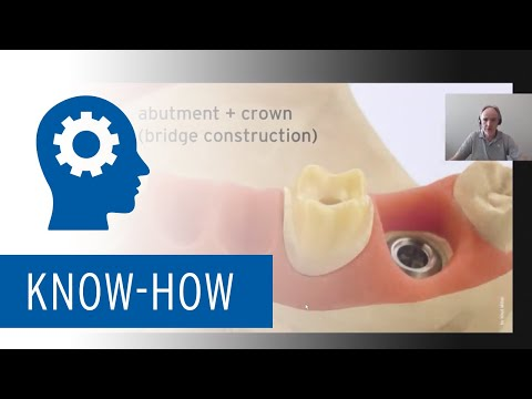 Implant Prosthetics with Ceramill CAD/CAM