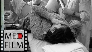 видео Гестоз при беременности: причины, симптомы и лечение
