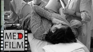 видео Гестоз при беременности