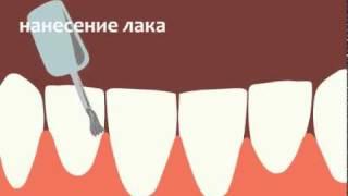 Фторирование зубов(, 2010-10-06T10:53:36.000Z)