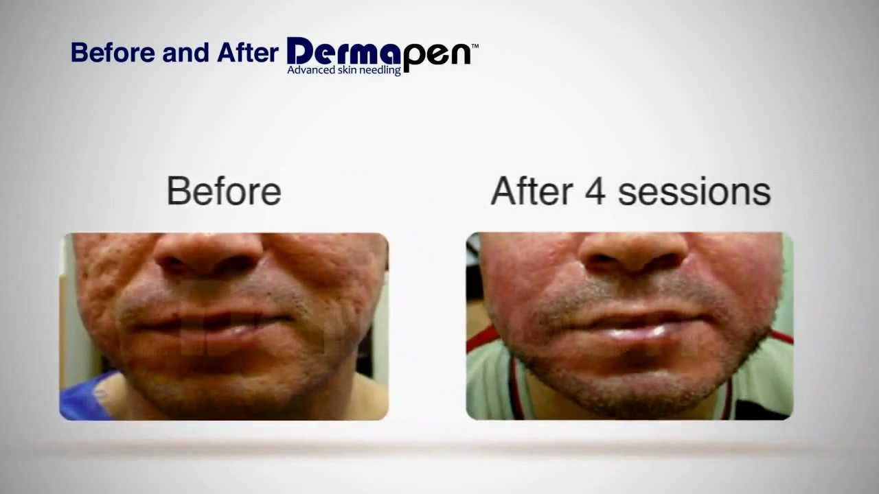 MicroNeedling Before and After - Dermapen® Treatment