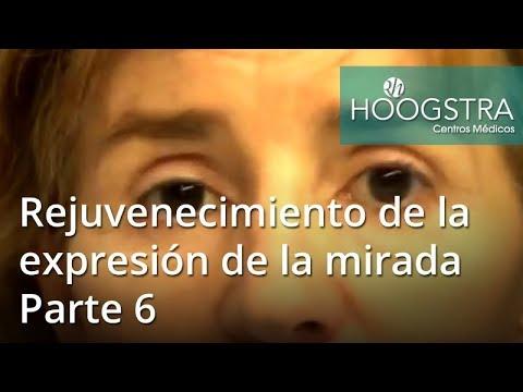 Rejuvenecimiento de la expresión de la mirada - Parte 6 (18073)