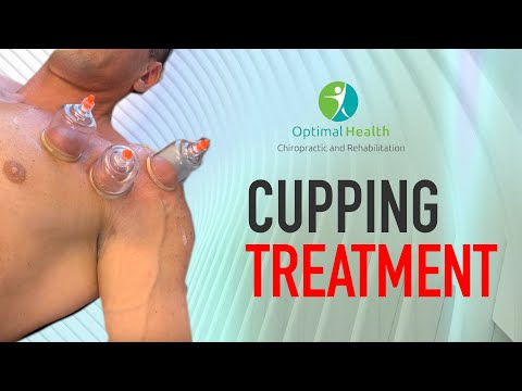 Chicago Chiropractor | Cupping Treatment