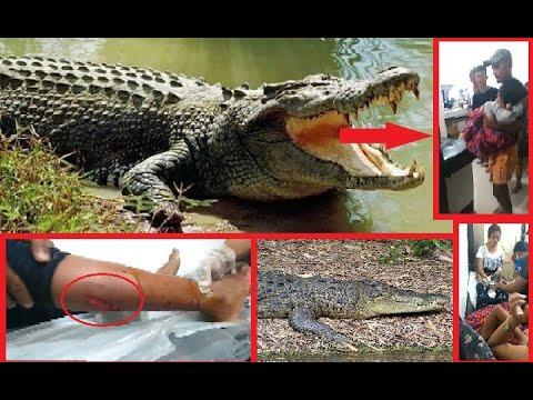Подросток вырвал сестру из пасти крокодила и спас ей жизнь