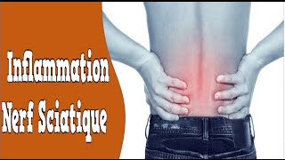 Inflammation Nerf Sciatique, Que Faire En Cas De Sciatique, Douleur Du Nerf Sciatique