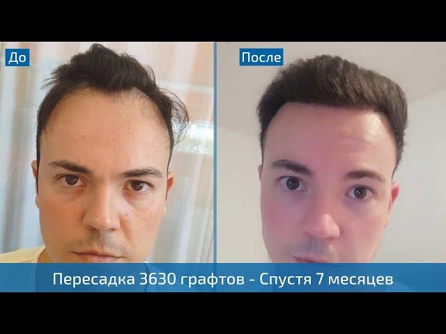 Лечение залысин пересадкой волос - Результат трансплантации 3630 графтов - Клиника HLC в Турции
