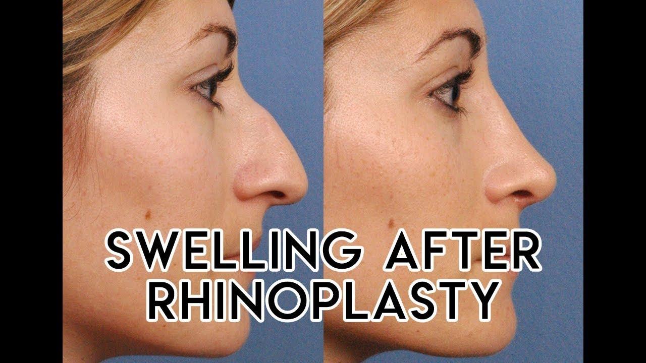 Swelling After Rhinoplasty Youtube