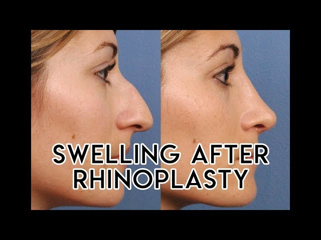 Swelling After Rhinoplasty