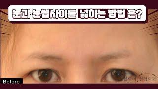 눈과 눈썹사이 넓히기 위해 이마눈썹거상술 많이 받는다?…