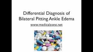 Edema differential diagnosis bilateral
