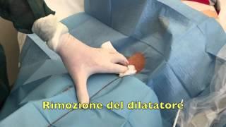 GAVeCeLT - Posizionamento ecoguidato di catetere per aferesi in vena femorale