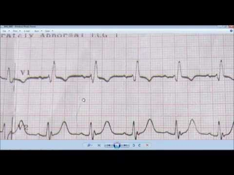 ECG: RIGHT BUNDLE BRANCH BLOCK